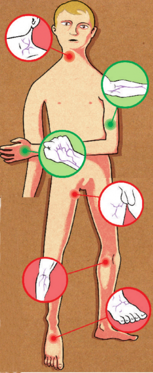 La phlébite profonde du membre inférieur le traitement